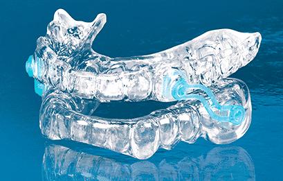 Dental Anti-Snoring Device