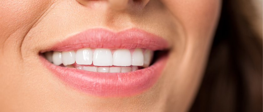 Woman with white teeth