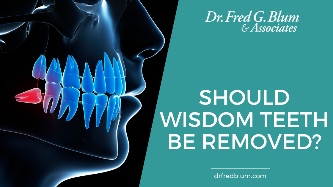 Should Wisdom Teeth Be Removed